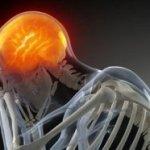¿En qué momento deberíamos de empezar a preocuparnos por un dolor de cabeza?