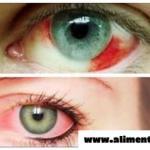 Tal vez alguna vez haz tenido los ojo rojo pero no sabia que se trata de algo fatalmente peligroso y silencioso.