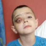 A mi hijo de 7 años le empezó a picarle el ojo de una manera extraña. Pero cuando su padre lo llevó al hospital, ¡algo terrible sucedió! nadie se lo esperaba