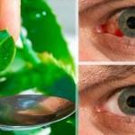 Con esta sencilla receta, cientos de personas han recuperado su visión y bajado significativamente la presión intraocular