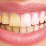 Elimina el sarro de tus dientes de forma natural.