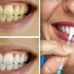 Los Dentistas no quieren que lo sepas, este remedio casero dejara tus dientes blancos desde la primera aplicacion