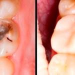 5 sencillos pasos para revertir las caries y curar la pérdida de dientes naturalmente!