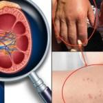 8 Síntomas que indican problemas en los riñones
