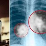 Este aceite detiene el crecimiento del cáncer, según la investigación