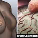 Las mujeres deben dejar de ignorar estos 5 signos de cáncer de mama