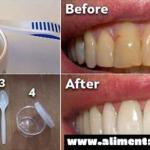Cómo deshacerte de la placa y blanquear tus dientes sin tratamientos costosos