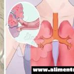 Diluye 3 Gotas en Agua y Mira lo que Pasa a los Pulmones y Vías Respiratorias