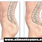 Hiperlordosis – Que es, causas, síntomas, tratamiento