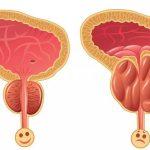Como Sobrevivir el Cáncer de Próstata Sin Cirugía, Medicamentos Ni Radiación!!!