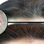 Método efectivo para prevenir las canas y evitar la caída del cabello para hombre y mujeres
