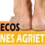 Remedios caseros para pies secos y talones agrietados