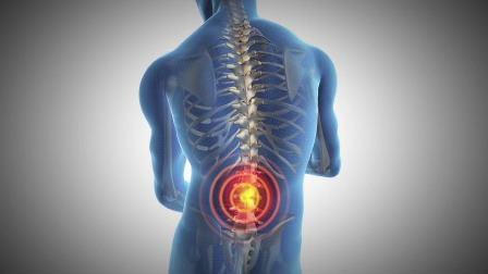 dolor-espalda-remediosnaturales