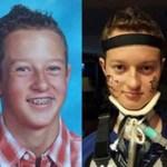 Un muchacho de 13 años de edad, paralizado desde el cuello después de recibir la vacuna contra el VPH de Gardasil