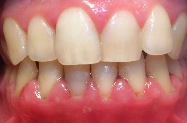 personas que padece gingivitis