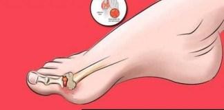 Síntomas del ácido úrico elevado y cómo tratarlo en casa