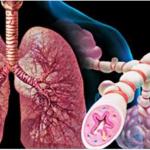 Tres Remedios Naturales Para Curar El Asma