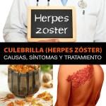 Culebrilla (Herpes Zóster): Causas, Síntomas Y Tratamiento