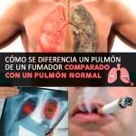 Cómo Se Diferencia Un Pulmón De Un Fumador Comparado Con Un Pulmón Normal