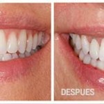Los dentistas pueden hacer crecer nuevos dientes en pocas semanas, adiós a los implantes