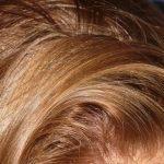 Remedios caseros para el pelo graso