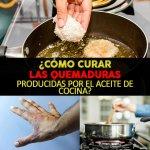 Cómo Curar Las QuemadurasProducidas Por El Aceite de Cocina