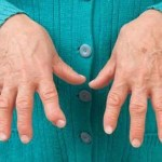 Prepara el tomillo con limón para sanar la artritis en casa sin ir al médico.