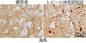 synuclein blog 20160318 PD DLB