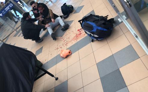 באר שבע: חייל שסירב להיבדק נפצע מקת של נשק של המאבטח