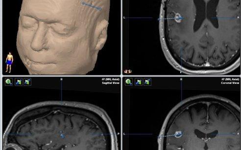 לראשונה בישראל: הסרת גידול סרטני מעומק המוח על ידי צריבה בקרן לייזר