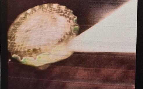 נער בלע פקק של בקבוק העשוי ממתכת משונן – בפעולה מהירה של רופאי לניאדו נשלף הפקק