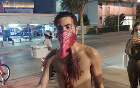 המשטרה עצרה שלושה חשודים בתקיפת המפגינים בתל אביב