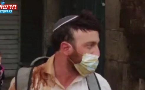 אינתיפאדת הטיקטוק: נעצר צעיר ערבי ששפך קפה רותח על יהודי בשער שכם והעלה לרשת | צפו