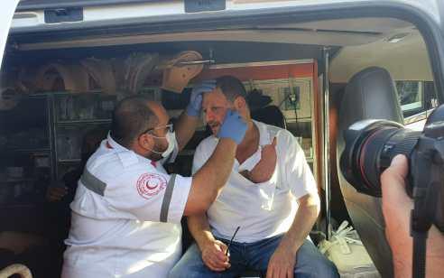 עימותים קשים בשכונת שייח' ג'ראח בירושלים: משקפיו של עופר כסיף נשברו וחולצתו נקרעה