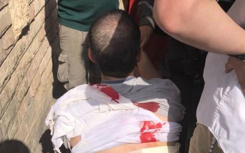 פיגוע דקירה בלוד: יהודי שעשה דרכו לתפילה נדקר בגבו בידי ערבים