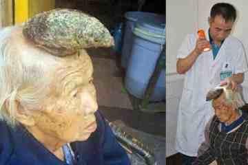 Η γιαγιά μονόκερος που έχει αφήσει άφωνους τους γιατρούς με το κέρατο που φύτρωσε στο κεφάλι της!