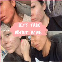 Lets talk about Acne