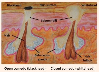 what is a blackhead