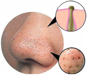 deep blackheads