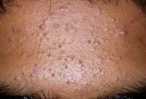 Comedonal Acne – Causes, Symptoms and Treatment
