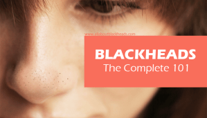 Blackheads – The Complete 101