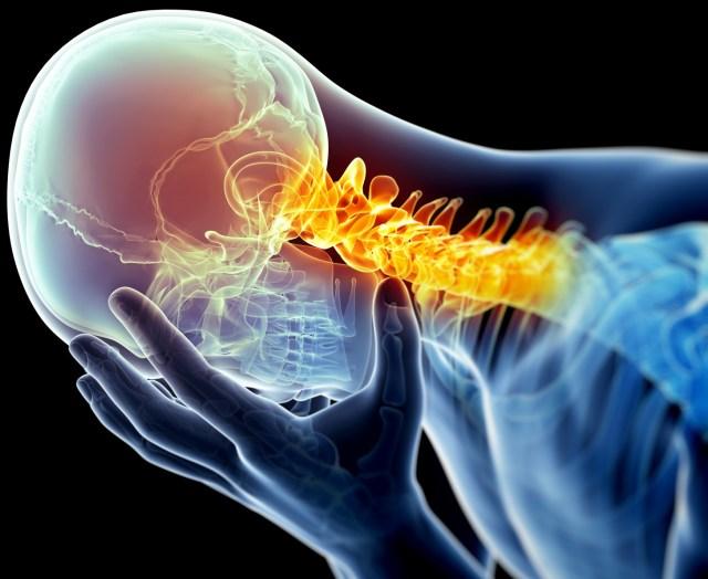 migraine-image
