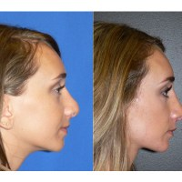 Revision Rhinoplasty - The Cure for a Botched Nose Job?