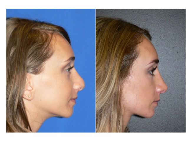 revision-rhinoplasty-denver-shah.001