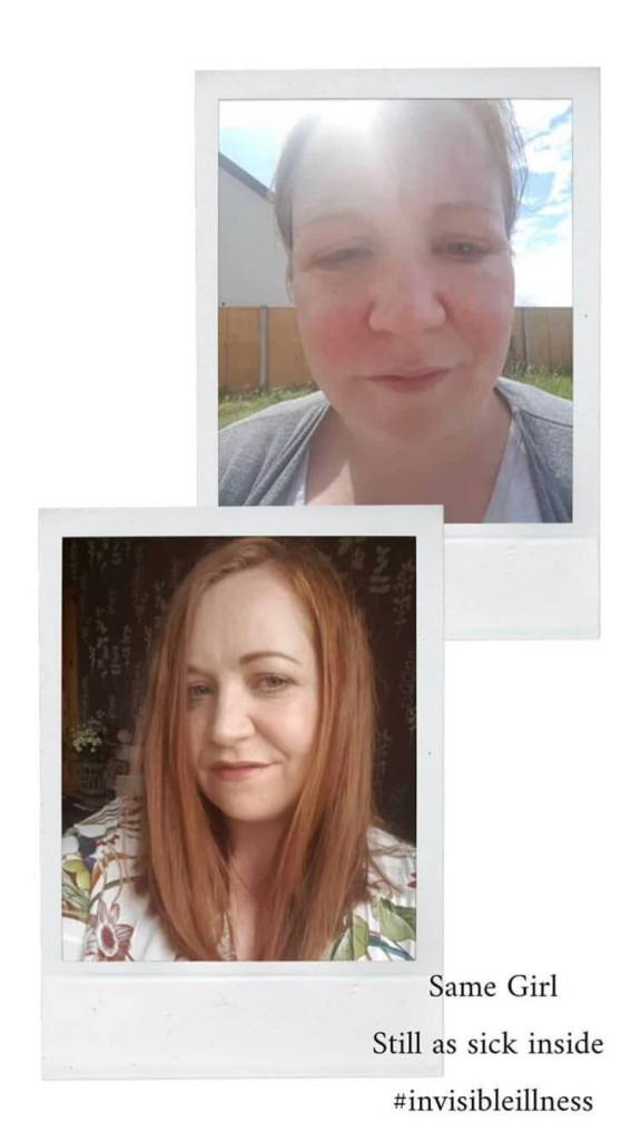 Before and after of a woman ill with lyme disease