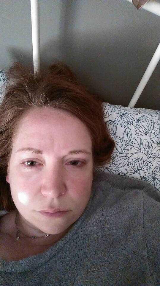 Woman sick in bed with lyme disease
