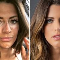 Esta modelo ocultó su vitiligo con maquillaje por años