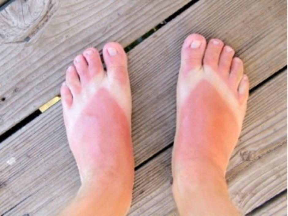 Sun Burned Feet