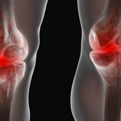 Ruptured Bakers Cyst Behind Knee