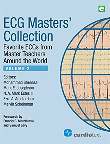 ECG Masters' Collection, Volume 2: Favorite ECGs from Master Teachers Around the World-EPUB